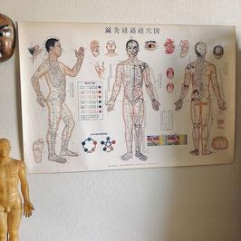 Affiche vintage japonaise d'acupuncture et moxibustion - années 70