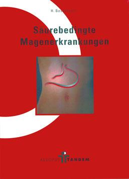 Säurebedingte Magenerkrankungen
