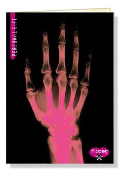 flipcat 003 > Röntgenhand