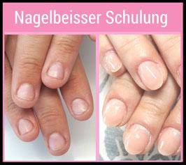 """Nagelbeisser-Behandlung   -  """"Online Schulung"""""""