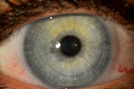 www.naturheilpraxis-binnursavas.de Augendiagnose Irsidiagnose