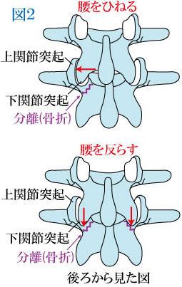 腰椎分離症の発生機序