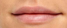 Lips Filler