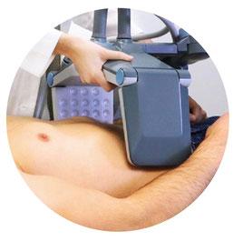 BTL Vanquish, elimina la grasa, liposuccion sin cirugia