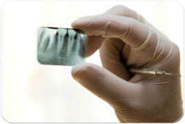 Bessere Wurzelfüllungen mit maschineller Wurzelbehandlung (© xy - Fotolia.com)