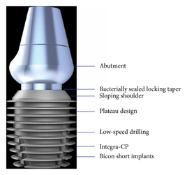 Designvorteile des Bicon Kurzimplantats