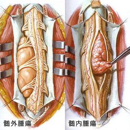 脊髄腫瘍絵図