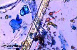 MycoLytics - Partikelsammlung, Schimmelpilze, Bakterien, Holzzerstörer, Mikroskopie, Kultivierung, Staubproben, Materialproben