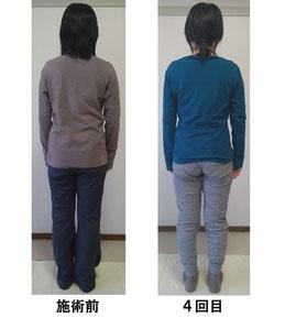 左側の腰痛肩こりの国分寺市女性