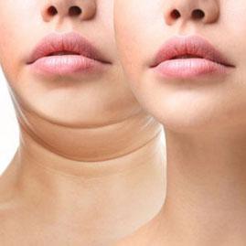 二重あごは太っているから起こる訳ではない。痩せていても二重あごにはなります。