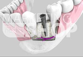 Implantat 3D-Grafik Unterkiefer