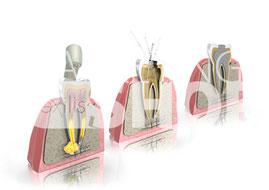 Wurzelkanalbehandlung 3D-Grafik
