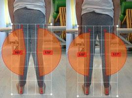 Korektywa i rehabilitacja Bielany - skolioza, płaskostopie, kolana koślawe lub szpotawe, łopatka skrzydłowata. Podoskopowe badanie stóp. Rehabilitacja Bielany, Żoliborz, Bemowo.