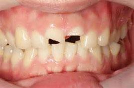 八戸市 くぼた歯科 乳歯 外傷 折れた ぶつけた