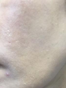 4日後、顎あたりから皮がめくれてます。