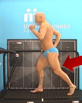 Dr. Matthias Marquardt - Typische Fehler bei der Lauftechnik - schlechte Hüftstreckung