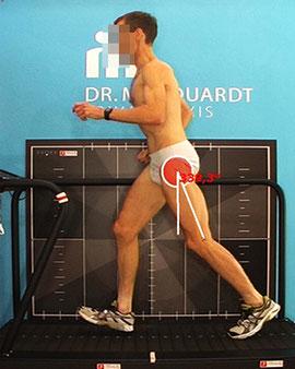 Dr. Matthias Marquardt - ideale Lauftechnik - Rückfußlauf
