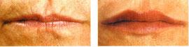 Lippenauffüllung