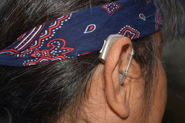 TRT療法補聴器
