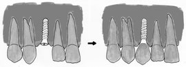 Implantat mit Krone füllt Zahnlücke
