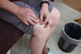 ひざのツボに、アロマきゅうをしているところ