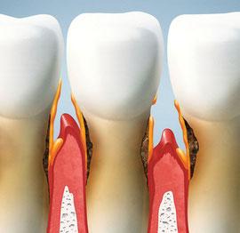 Zahnfleischentzündung und Zahnfleischtaschen bei Parodontose: © serdiukov - Fotolia.com 60211656)