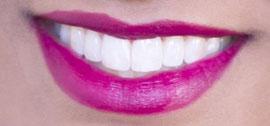 Sichtbar hellere Zähne schon nach einer Stunde!