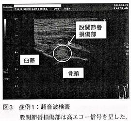 超音波画像
