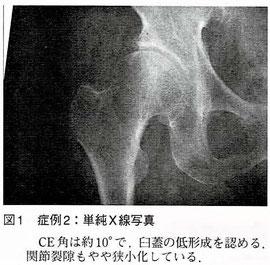単純X線写真