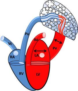 Links-Herzversagen: linkes Atrium und Pulmonalvenen sind gestaut, es besteht ein Lungenödem; RA: rechtes Atrium; RV: rechter Ventrikel; VC: Vena cava; Pu: Pulmonalarterie; LA: linkes Atrium; LV: linker Ventrikel; PV: Pulmonalvene; Ao: Aorta