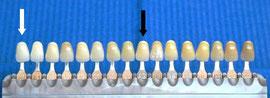 Mit einer Farbskala kann der Zahnarzt die Wirkung der Zahnaufhellung exakt messen
