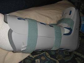 Dienstag 07.06. - mit dem Achilleswalker zuhause. Es ist ein klobiges Ding, aber durch die 4 Luftkammern die man je nach Gefühl aufpumpen kann, liegt der Fuß immer gut und fest in optimaler Lage.