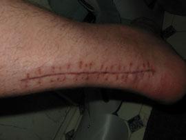 Freitag 25.06. - Leichte Tests beim Auftreten zeigen, daß die Achillessehne arg unter Spannung steht. Den Fuß bekomm ich noch nicht in die 90 Grad Stellung.