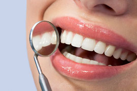 Erste Erfolge schon nach wenigen Tagen: Die Zähne werden heller!