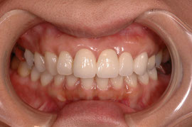 審美歯科 古くなった歯を治したい