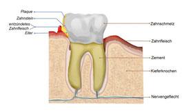Parodontosebehandlung Sigmaringen
