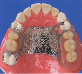 部分金属床義歯