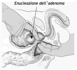 Adenomectomia prostatica