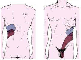 Irradiazione cutanea del dolore nella colica renale