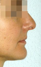 Antes de tratamiento ortodóncico