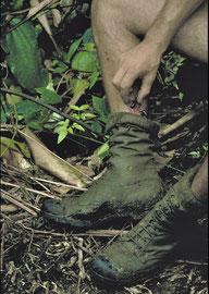 PNG: leeches feasting on Derek Skingles' leg