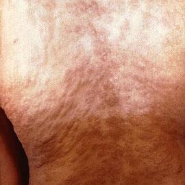 Lésions cutanées dans le dos d'une personne infectée. La peau parait granuleuse. Il s'agit du premier stade de développement de la maladie. Sources: wikipédia: http://fr.wikipedia.org/wiki/Syphilis