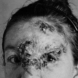 Aspect du visage d'une personne infectée. Cette personne se trouve au dernier stade (le plus avancé) de la maladie. Sa peau est littéralement perforée par la bactérie. Sources: Wikipédia: http://fr.wikipedia.org/wiki/Syphilis