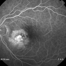 Degenerazione maculare (fluorangiografia)