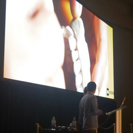 Bogdan & Nazariy Mykhaylyuk Minimally invasive prosthetics.