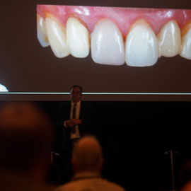Javier Perez Criteria for Material Selection and Fabrication Technique in the Esthetic Zone