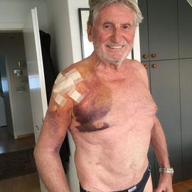 Ein paar Tage nach der Operation