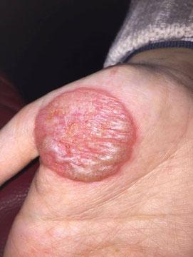 Pilz am finger