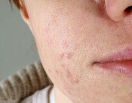 problemi della pelle con mascherine brufoli acne dermatiti salus house