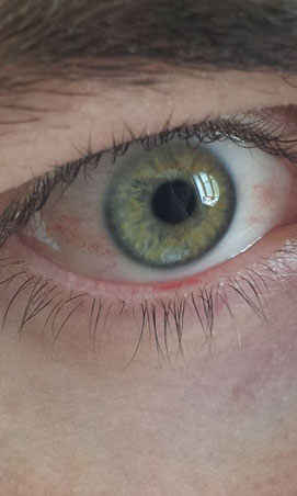 rotes Auge (Trockene Augen Symptome, Sicca Syndrom)